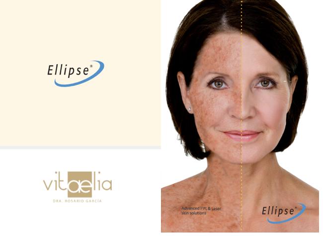 ellipse-ipl